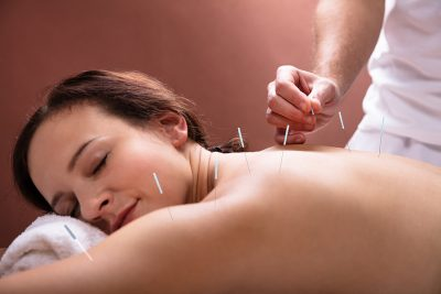 Woman getting an acupuncture Toowoomba treatment