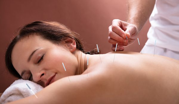 Should You Get Acupuncture In Toowoomba?